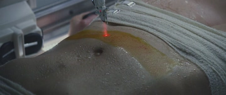 Лазерный резак делает героине кесарево