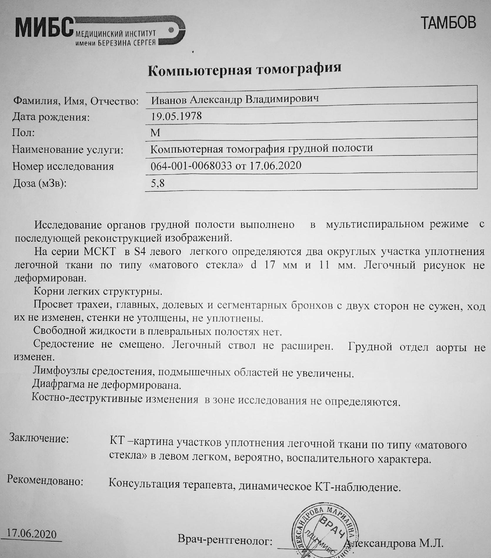 Ковид у Иванова, результат КТ